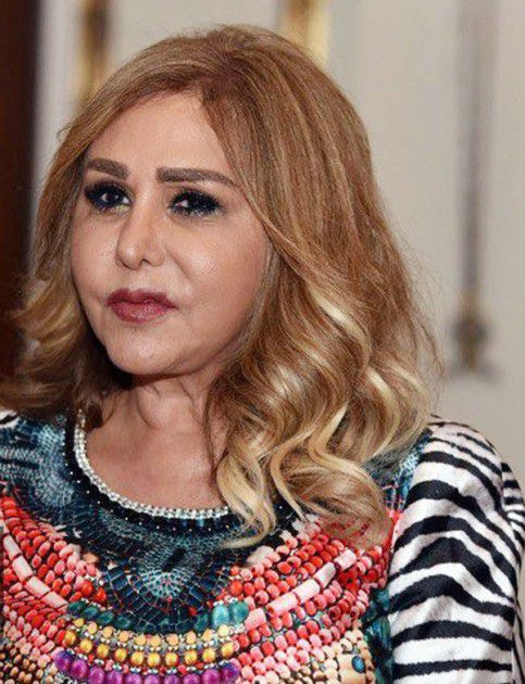 الممثلة السورية مها المصري بعد التجميل