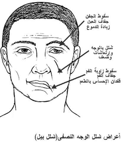 د وليد أبو دهن ما هو شلل بل Bell S Palsy الذي أصاب جورج كلوني مجلة الجرس