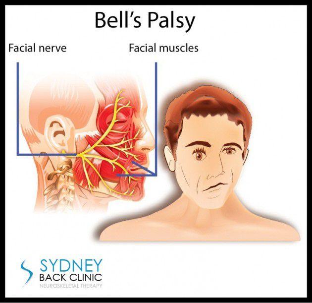 يحدث نتيجة التهاب أو تورم الأعصاب