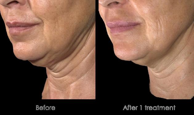 تقنية الدكتور نادر صعب لشد الوجه من دون جراحة