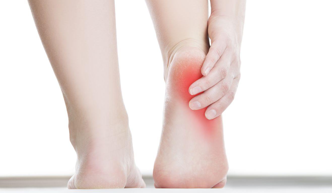 يعاني المصاب بالمهماز العقبي من ألم في القدم وخاصة عند المشي على أرضية صلبة