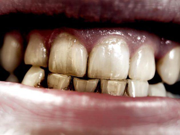 تأثير التدخين على الأسنان