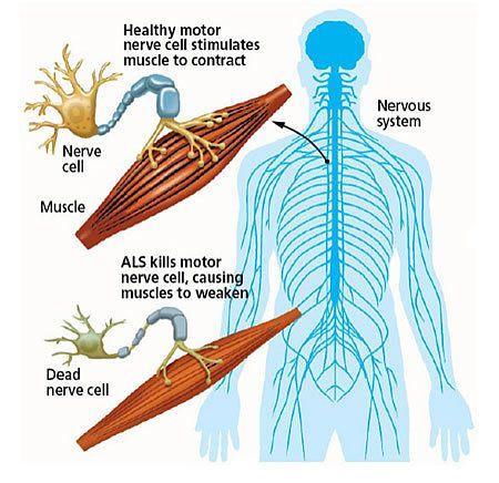 أعراض التصلّب الجانبي الضموري WR - ALS
