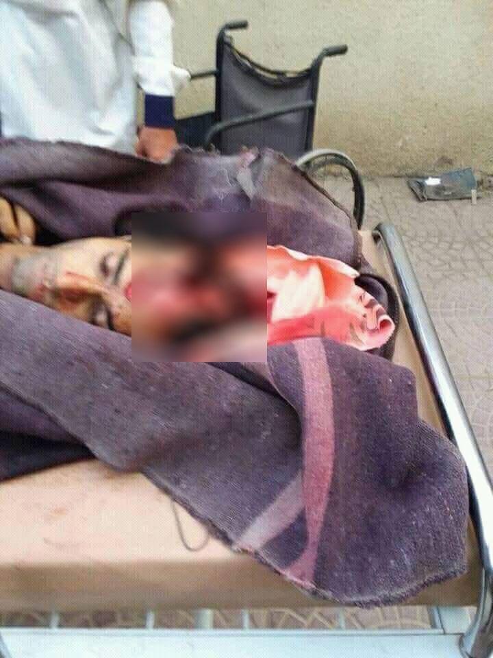 صورة جلال السعيدي وقمنا بتغطية رأسه المفتوح