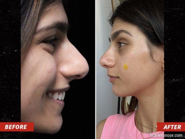 ميا خليفة قبل وبعد التجميل