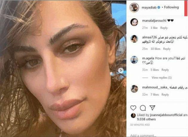 مايا دياب والصورة التي حذفتها