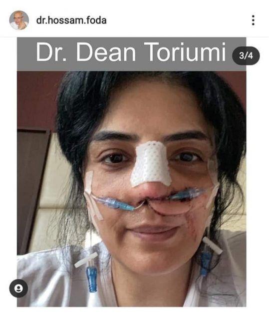 صورة قاسية لحورية فرغلي أثناء عملية تعديل أنفها!